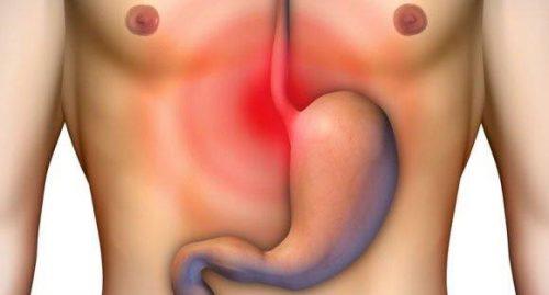 Đau dạ dày là đau bên nào?