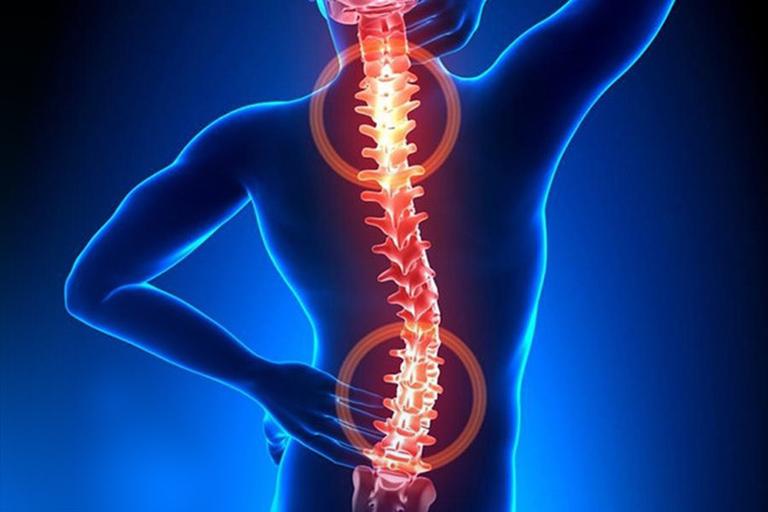 benh thoat vi dia dem da tang - Thoát vị đĩa đệm đa tầng: Dấu hiệu, nguyên nhân cùng cách điều trị Hiệu Quả