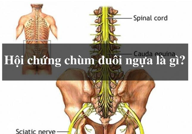 hoi chung trum duoi ngua do thoat vi dia dem - Hội chứng chùm đuôi ngựa: Nguyên nhân, triệu chứng và cách trị bệnh