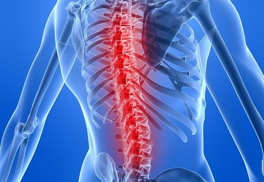lao cot song - Hội chứng chùm đuôi ngựa: Nguyên nhân, triệu chứng và cách trị bệnh