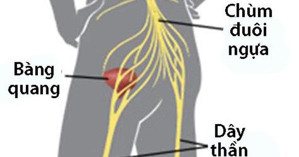 photo 1 15555747626762073545615 crop 1555574914820737243244 - Hội chứng chùm đuôi ngựa: Nguyên nhân, triệu chứng và cách trị bệnh