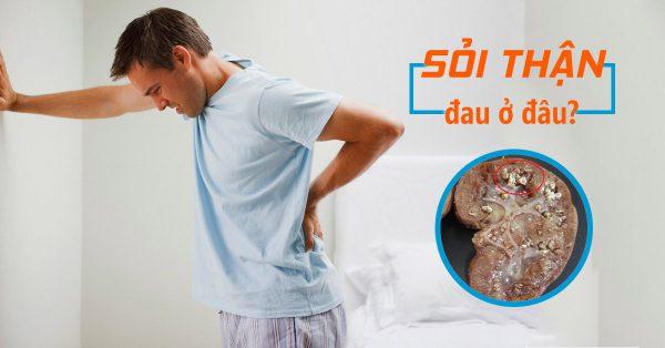 Tìm hiểu vị trí đau do sỏi thận