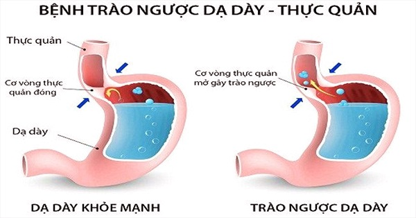 trao-nguoc-axit-da-day