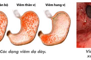 Bệnh viêm xung huyết hang vị dạ dày có nguy hiểm không?