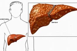Xuất huyết tiêu hóa – xuất huyết đường ruột