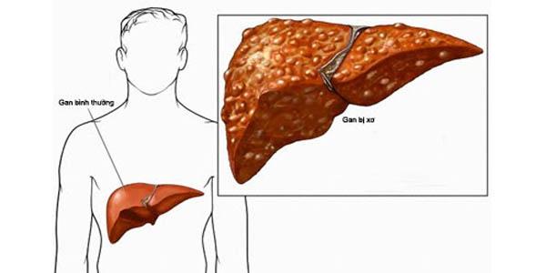 Biến chứng xuất huyết tiêu hóa