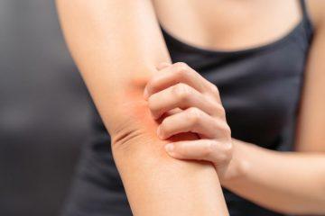 Bệnh ngứa ngoài da và cách chữa trị dứt điểm bằng thảo dược