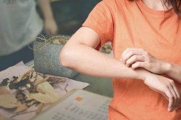 Mề đay mãn tính, cấp tính: Triệu chứng và cách điều trị từ Đông y cổ truyền