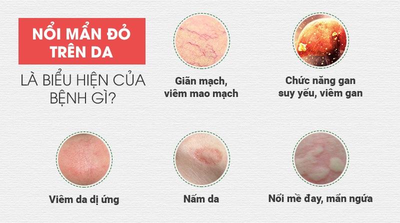 Nổi mẩn đỏ trên da cảnh báo nhiều bệnh nguy hiểm