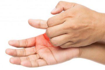 Ngứa khắp người không nổi mẩn là bệnh gì và cách chữa từ thảo dược