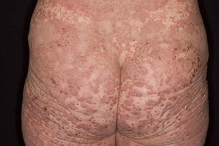 Nguyên nhân gây nổi mẩn ngứa ở mông