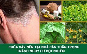 Chữa vảy nến da đầu tại nhà cần thận trọng