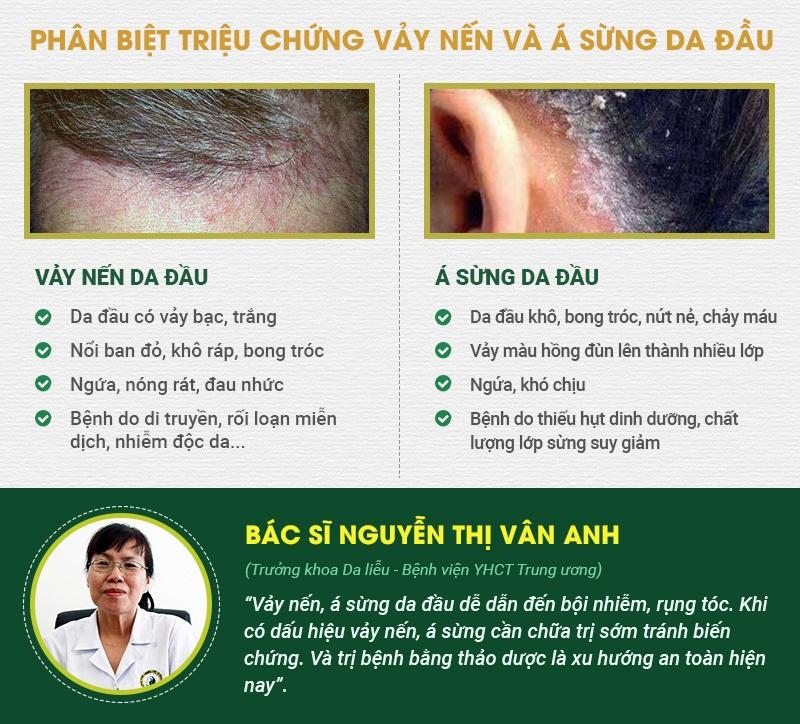 cách phân biệt vảy nến da đầu và á sừng da đầu