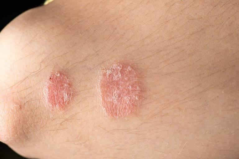 Vảy nến hồng là bệnh không lây lan và sẽ tự hết sau 6 - 8 tuần