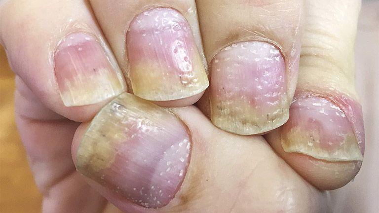 Triệu chứng vảy nến móng