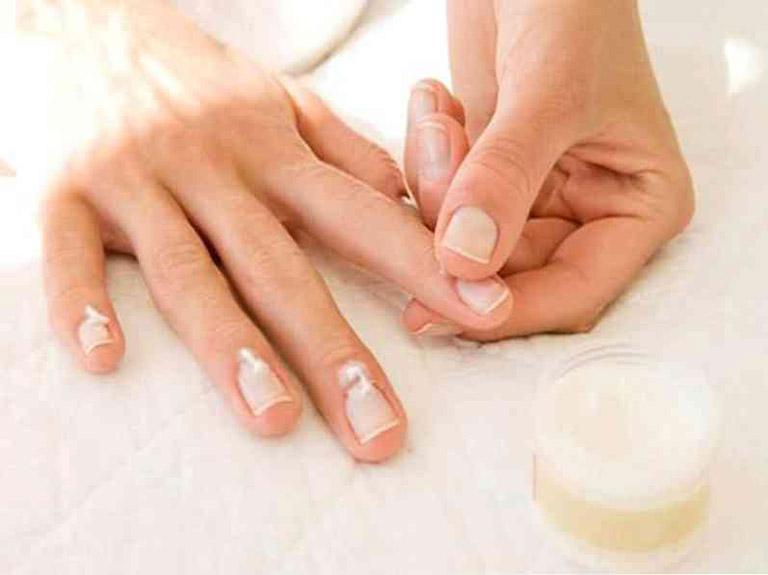 Điều trị vảy nến móng tay