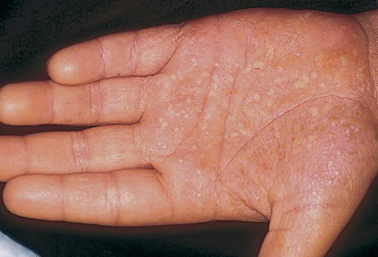 Các mụn mủ của bệnh vẩy nến thể mủ có thể xuất hiện ở lòng bàn tay