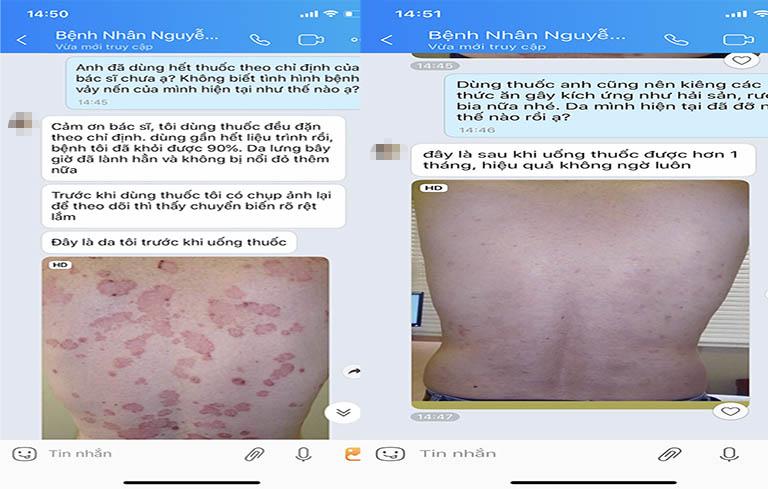 Phản hồi của người bệnh sau khi điều trị bằng Thanh bì dưỡng can thang