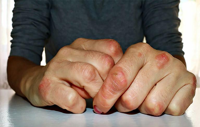 Hàng triệu người phải sống với nỗi đau do vảy nến gây nên mà chưa được chữa trị đúng cách
