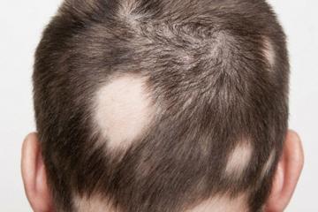 Tóc rụng từng mảng là bệnh gì? Nguyên nhân, Cách điều trị
