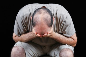 Hói đầu – Nguyên nhân và cách khắc phục, giảm rụng tóc
