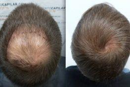 5 cách mọc tóc nhanh cho nam giới ngay tại nhà