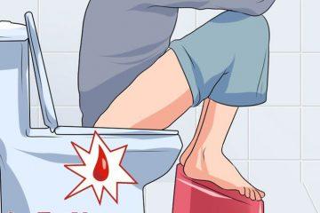 Viêm hang vị dạ dày phù nề xung huyết và phương pháp điều trị