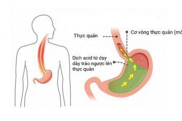 Viêm họng do trào ngược dạ dày nguy hiểm như thế nào?