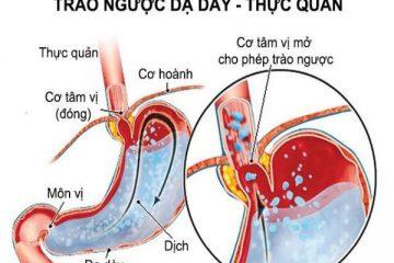 Trào ngược dạ dày có nên uống nước dừa không?