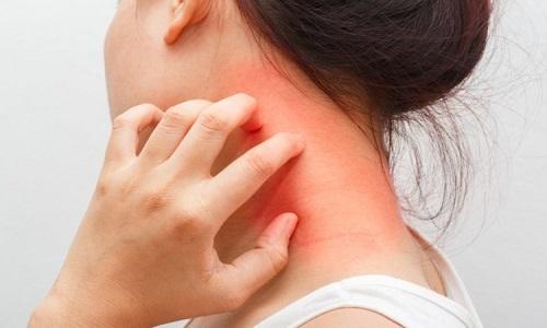 Kinh nghiệm chữa viêm da cơ địa trên diễn đàn đến từ bác sĩ da liễu