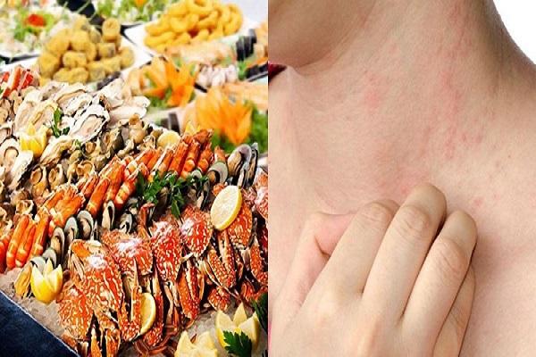 Bệnh viêm da tiếp xúc là gì? Nguyên nhân, biểu hiện và cách điều trị