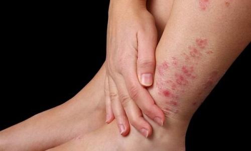 Bệnh viêm da cơ địa có lây không và liệu có di truyền không?