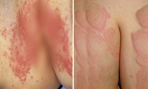 Viêm da cơ địa ở mông gây ngứa, nổi mẩn đỏ và cách can thiệp