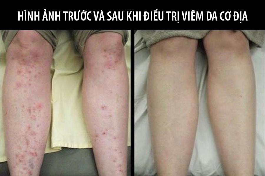 Viêm da cơ địa ở chân có cả ngứa và mẩn đỏ phải làm sao và cách chữa