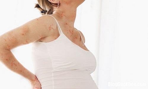 Viêm da cơ địa ở bà bầu, sau sinh và bài thuốc bôi tắm trị bệnh