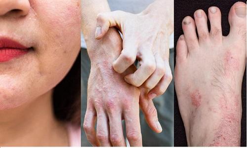 Viêm da cơ địa ở người lớn: Tác nhân gây bệnh và hướng chữa trị
