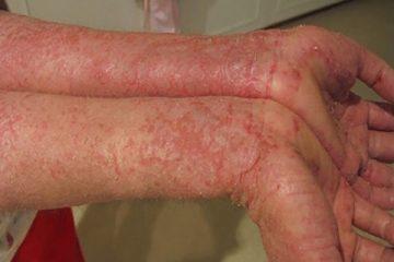 Viêm da dị ứng là gì? Nguyên nhân, dấu hiệu và biện pháp điều trị