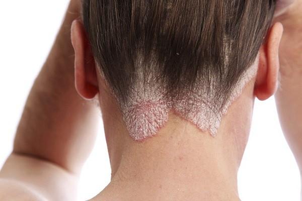 Viêm da đầu gây rụng tóc nhiều và đỏ bệnh nhân phải làm sao?