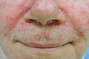 Viêm da tiết bã nhờn ở mặt và thuốc trị hết sạch chất nhờn