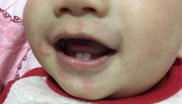 Viêm da quanh miệng là thế nào và cách trị tại nhà bằng thuốc