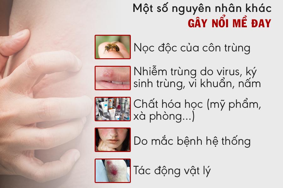 Bệnh nổi mề đay là gì? Nguyên nhân, dấu hiệu và cách chữa nhanh