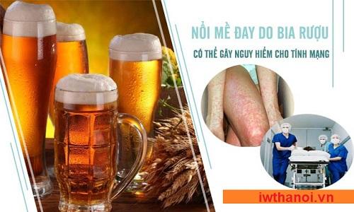 Uống rượu bia bị nổi mề đay mẩn ngứa dị ứng và cách chữa