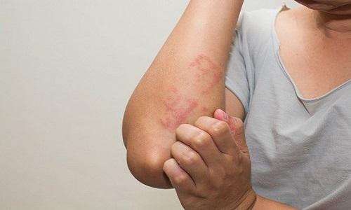 Nổi mề đay ở tay (có thể kèm theo mẩn đỏ) và phương pháp chữa trị