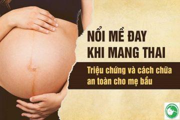 Bà bầu bị dị ứng nổi mề đay khi mang thai phải làm sao và mẹo chữa