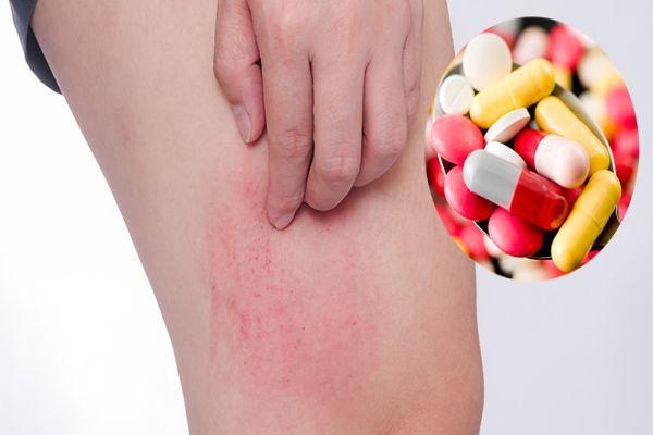 Các loại thuốc chống dị ứng nổi mề đay hiệu quả cho người bệnh