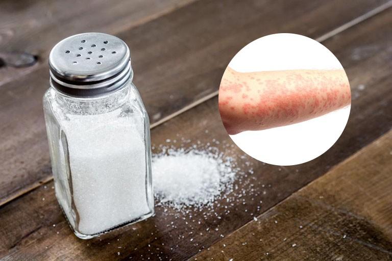 Cách trị mề đay bằng muối, nước muối rất rẻ tiền mà hiệu quả