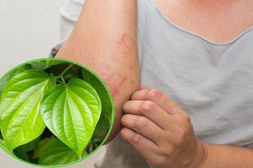 Cách chữa mề đay bằng lá trầu không có tốt không và các hạn chế