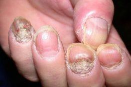 Vảy nến móng tay: Kiến thức bệnh và thuốc bôi điều trị tránh bị hư