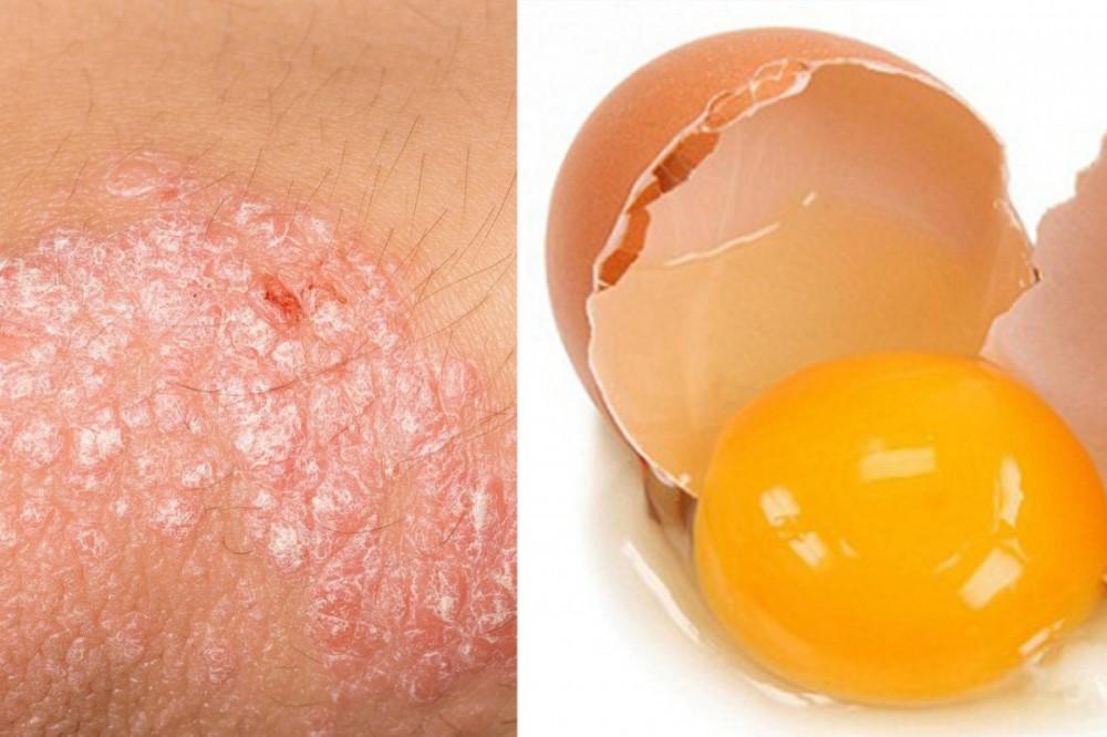 Cách chữa vảy nến bằng lòng đỏ trứng gà rất đơn giản và tiện lợi