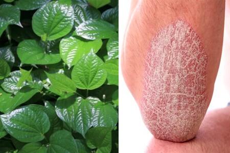 Cách chữa bệnh vảy nến bằng lá lốt giúp hết đốm vẩy trên da